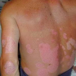 Cura di eczema diabetica